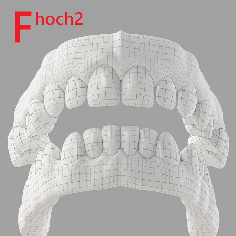 Digitaler Zahnersatz ohne Abdrücke auf Zähnen und Implantaten